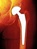 Total Hip Replacement, X-ray Premium Photographic Print by Miriam Maslo