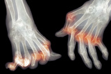Arthritic Hands, X-ray Posters