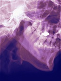 Normal Lower Jaw, X-ray Photographic Print by Miriam Maslo