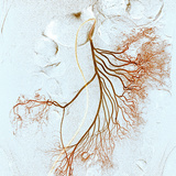 Abdominal Blood Vessels, X-ray Premium Photographic Print by Du Cane Medical