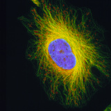Fibroblast Cell Photographic Print by Dr. Gopal Murti