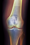 Arthritic Knee, X-ray Prints by Du Cane Medical