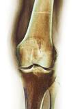 Arthritic Knee, X-ray Photo by Du Cane Medical