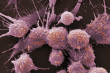 Prostate Cancer Cells, SEM Photographic Print by Dr. Gopal Murti