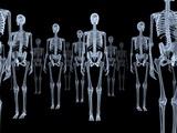 Skeletons, X-ray Artwork Fotografisk trykk av David Mack