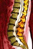 Spine Degeneration, MRI Scan Photographic Print by Du Cane Medical