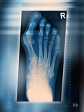 Bunion, X-ray Photographic Print by Miriam Maslo