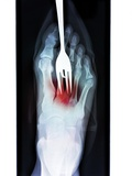 Foot Fork-stabbing Injury, X-ray Photographic Print by Du Cane Medical