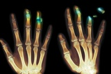Fingertip Laceration Injuries, X-rays Photographic Print by Du Cane Medical