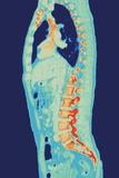 Normal Torso, MRI Scan Photo by Miriam Maslo