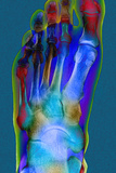 Normal Foot, X-ray Photographic Print by Du Cane Medical