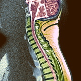 Healthy Spine Photographic Print by Du Cane Medical