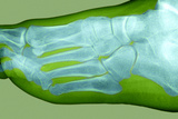 Normal Foot, X-ray Poster by Du Cane Medical