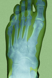 Normal Foot, X-ray Posters by Du Cane Medical