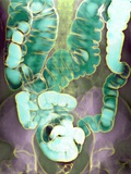 Large Intestine, X-ray Photographic Print by Du Cane Medical