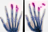 Fingertip Laceration Injuries, X-rays Prints by Du Cane Medical