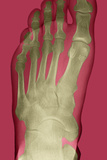 Normal Foot, X-ray Prints by Du Cane Medical