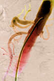 Arterial Stents, X-ray Posters by Du Cane Medical