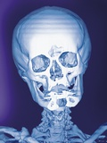 Normal Skull, X-ray Photographic Print by Miriam Maslo