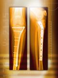 Pinned Broken Leg, X-rays Photographic Print by Miriam Maslo