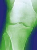 Arthrosis of the Knee, X-ray Prints by Miriam Maslo
