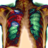 Pneumonia, X-ray Photographic Print by Du Cane Medical