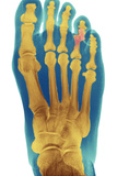 Dislocated Toe, X-ray Photographic Print by Du Cane Medical
