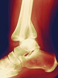 Fractured Ankle, X-ray Photographic Print by Miriam Maslo
