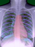 Heart, Chest X-ray Photographic Print by Du Cane Medical