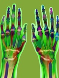 Arthritic Hands, X-ray Photographic Print by Du Cane Medical