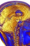 Brain Tumour, 3-D MRI Scan Photographic Print by  PASIEKA