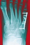 Pinned Foot Bone Fracture, X-ray Photographic Print by Miriam Maslo