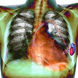 Heart Pacemaker, X-ray Photographic Print by Du Cane Medical
