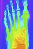 Normal Left Foot, X-ray Photographic Print by  PASIEKA
