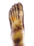 Fractured Foot, X-ray Fotografisk trykk av Du Cane Medical
