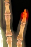 Amputated Fingertip, X-ray Prints by Du Cane Medical
