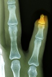 Amputated Fingertip, X-ray Photographic Print by Du Cane Medical
