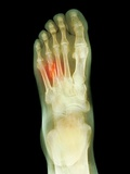 Fractured Foot, X-ray Photographic Print by Du Cane Medical