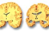 Alzheimer's Disease, Artwork Prints by  PASIEKA