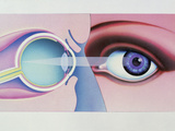 Artwork of Human Eye In Front View And In Section Photographic Print by Hans-ulrich Osterwalder