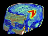 Brain Tumour, 3D-MRI Scan Photographic Print by  PASIEKA