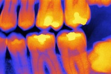 Teeth with Fillings, X-ray Photographic Print by  PASIEKA