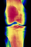 Coloured X-ray Image of a Normal Knee-joint Photographic Print by  PASIEKA