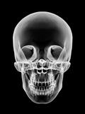 Human Skull, X-ray Artwork Photographic Print by  PASIEKA