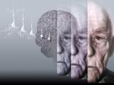 Alzheimer's Disease Posters by Hans-ulrich Osterwalder