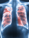 Fibrosis of the Lung, X-ray Photographic Print by  PHT