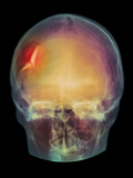 Fractured Skull, X-ray Photographic Print by  PHT