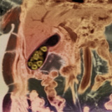 Gallstones, MRI Scan Photographic Print by  PHT