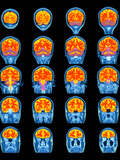 Healthy Brain, MRI Scans Prints by Science Photo Library