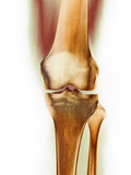 Healthy Knee, X-ray Photo by Science Photo Library